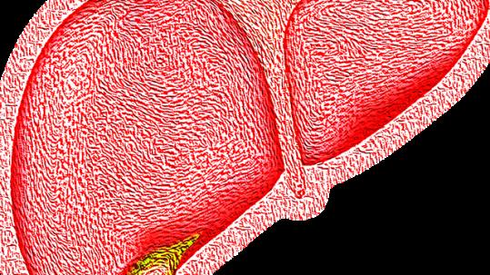 enfermedad hígado graso